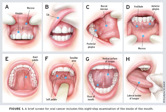 Why Oral Cancer Screenings are a Necessity   Hedgecock Dental wiZ7tFMB
